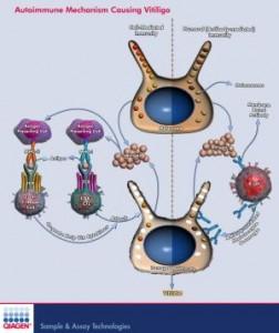 وصفة علاج البهاق | معلومات البهاق | صور  البهاق | اسباب البهاق |انواع البهاق v9-252x300.jpg