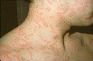 صور للطفح الجلدي الذي يسببه المرض, و كان مصحوباً بالتهاب بالمفاصل و حرارة  عالية.